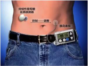 行业分析:胰岛素泵价格为什么那么贵?