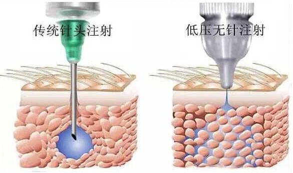 胰岛素无针注射器真的那么神奇吗?