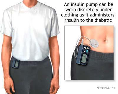 迈世通胰岛素泵的产品优势有哪些