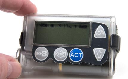 使用胰岛素泵治疗糖尿病有哪些优点