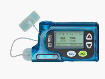 胰岛素泵受糖尿病患者喜爱的原因有哪些