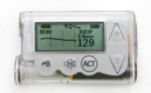 胰岛素泵使用过程中的异常反应