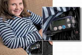 儿童佩戴胰岛素泵需要注意哪些问题