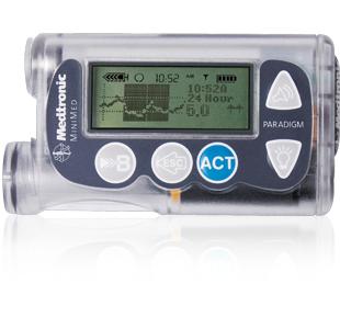 胰岛素泵的工作原理和治疗的优势有哪些