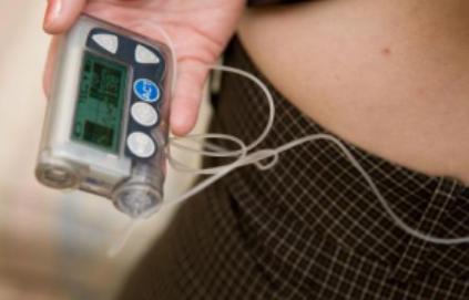 胰岛素泵的临床效果怎么样