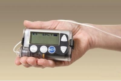 胰岛素泵每月耗材和打针费用的相比哪个更节省?