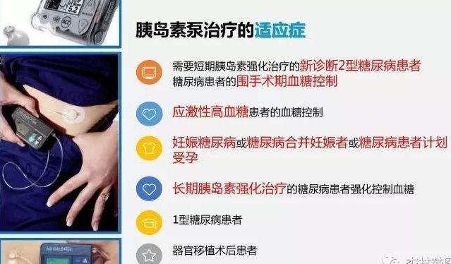 胰岛素泵使用规范丨稳糖北京服务中心