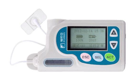 选择国产胰岛素泵有哪些优势?