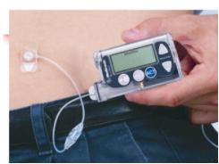 预备篇:胰岛素泵使用前需要具备什么