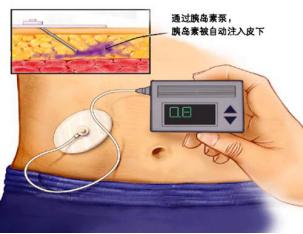 禁忌篇:胰岛素泵使用禁忌事项