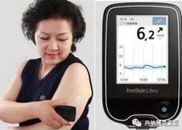 为什么进口胰岛素泵非常好用