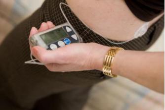 胰岛素泵使用需要注意一些身体状况